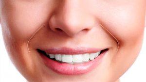 Cuál es la diferencia entre arruga y línea de expresión? 3