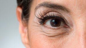 Cuál es la diferencia entre arruga y línea de expresión? 4