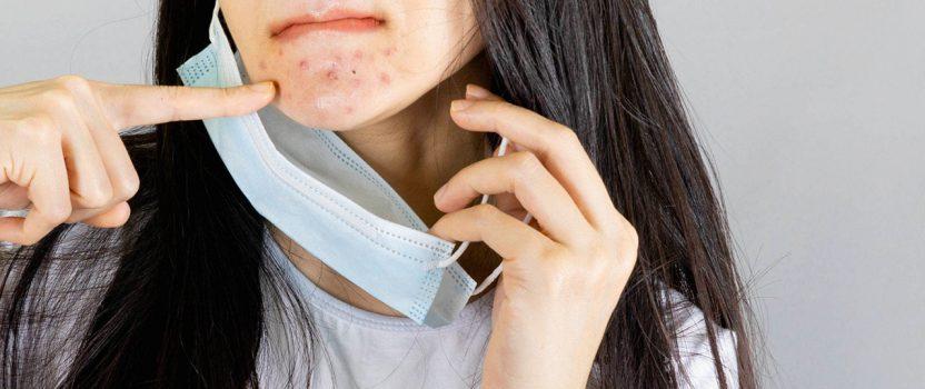 ¿Has sentido cambios en tu piel por el uso de la mascarilla?